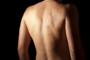 An individual's back is left exposed as a representation of chiropractic care.